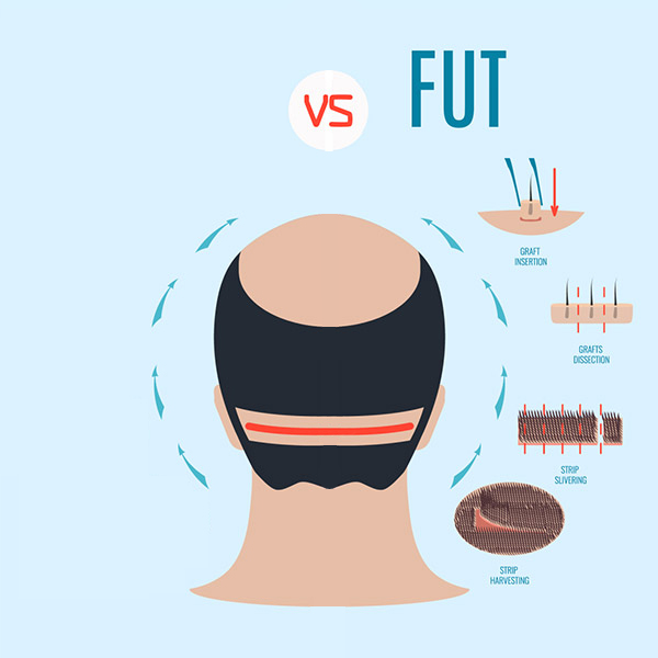 FUE and FUT hair transplant procedures Dr. Kayihan Sahinoglu