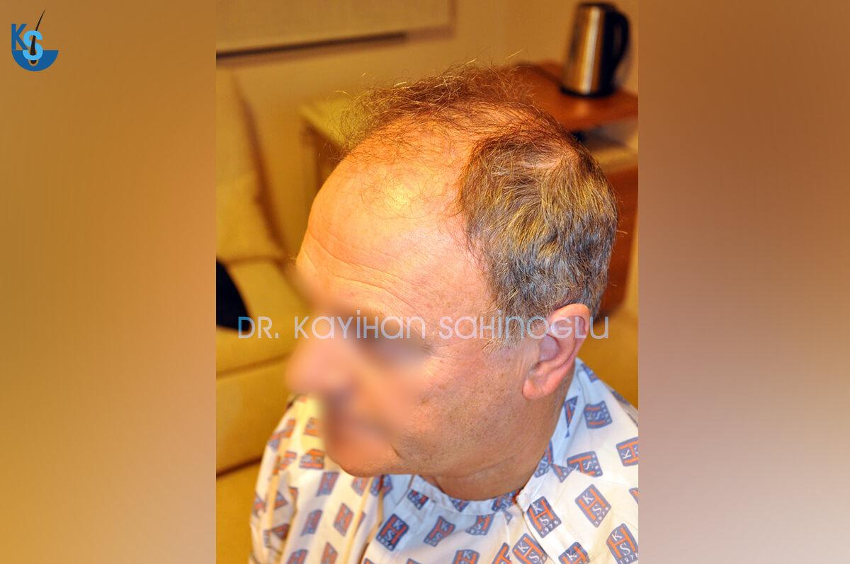 Hair Transplant Turkey Before After Dr. Kayihan Sahinoglu