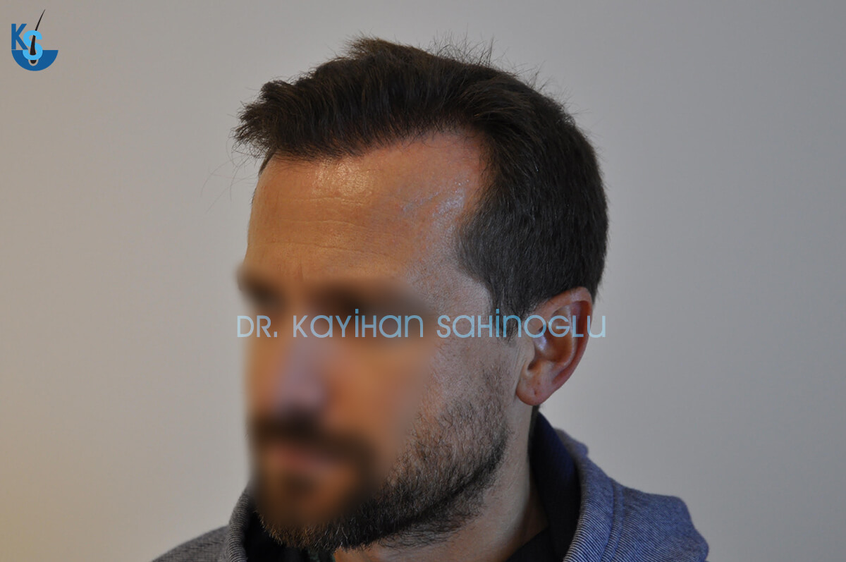 Hair Transplant Turkey Before After Dr. Kayihan Sahinoglu