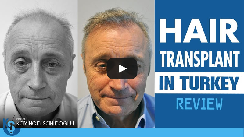Hair Transplant Review Turkey Paul Conlon