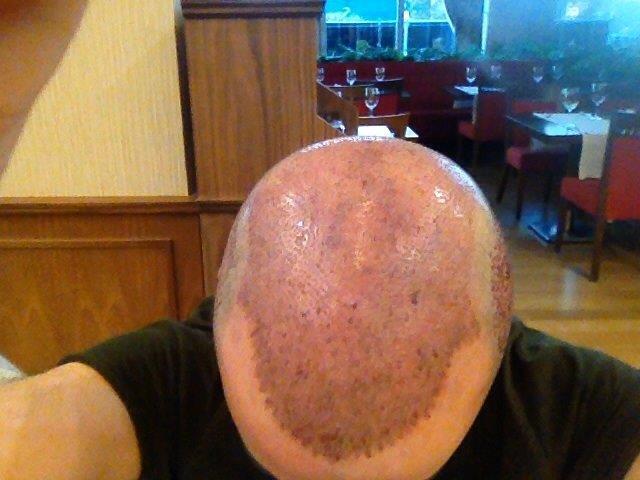 Dr. Kayihan Sahinoglu   Hair Transplant Surgeon