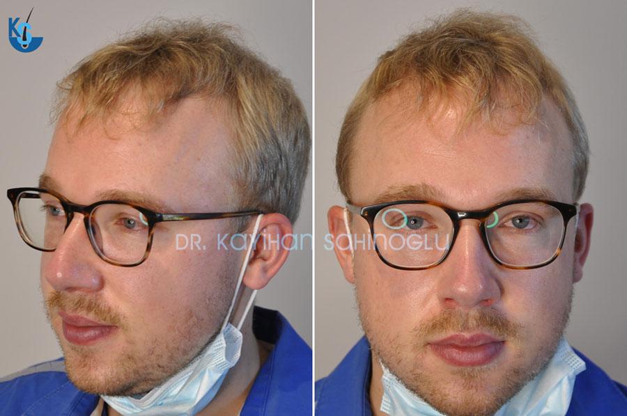 Hair Transplant in Turkey | Reviews | Gertjan from Netherlands